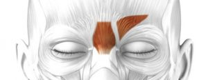 Botox Training Glabellar Complex insertion