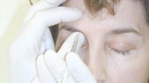 Botox Injection Glabellar