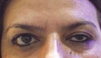 Botulinum Toxin Eye Lid Ptosis