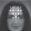 Botox Chronic Migraine Treatment Injection 1