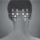 Botox Headache Cronic Migraine Injection 3